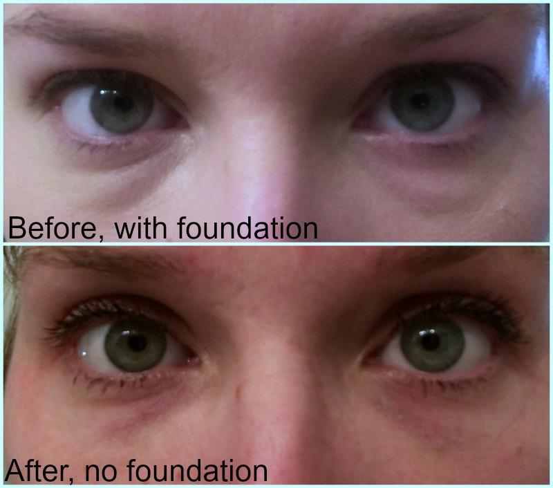 Hello Bright Eyes: Dermal Filler   Elamar Skin Science - Our