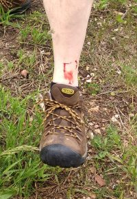 Jason encountered some barbed-wire from a down fence while hiking out on ONeill Pass, got a couple of puncture wounds and scratches