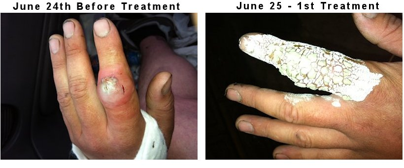 MRSA Staph Infection Healed Naturally | Our Peaceful Planet