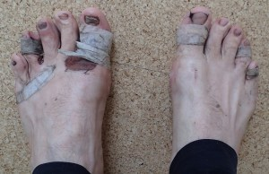 Damaged feet from my footwear