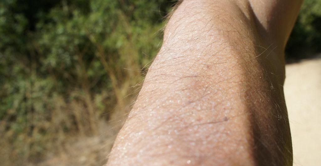 Sweat - a brilliant mechanism with a dangerous potential