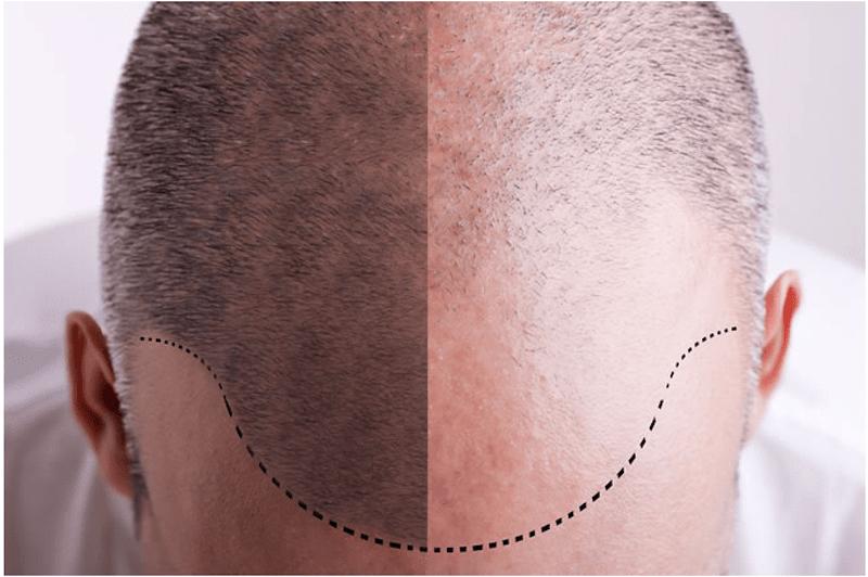Transplant - Hair Loss