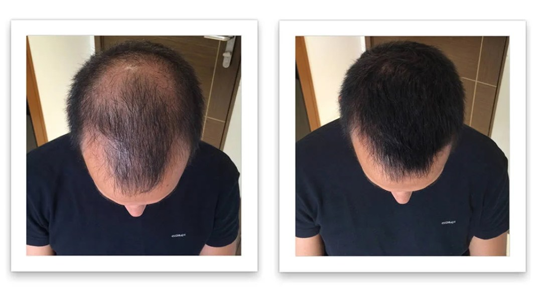 Before And After Rogaine Treatment