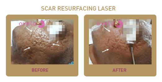 Benefits Of Laser Acne Scar Resurfacing