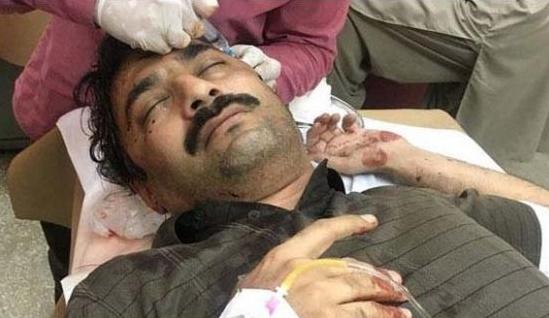 Attack on Journalist Ahmed Noorani in Islamabad