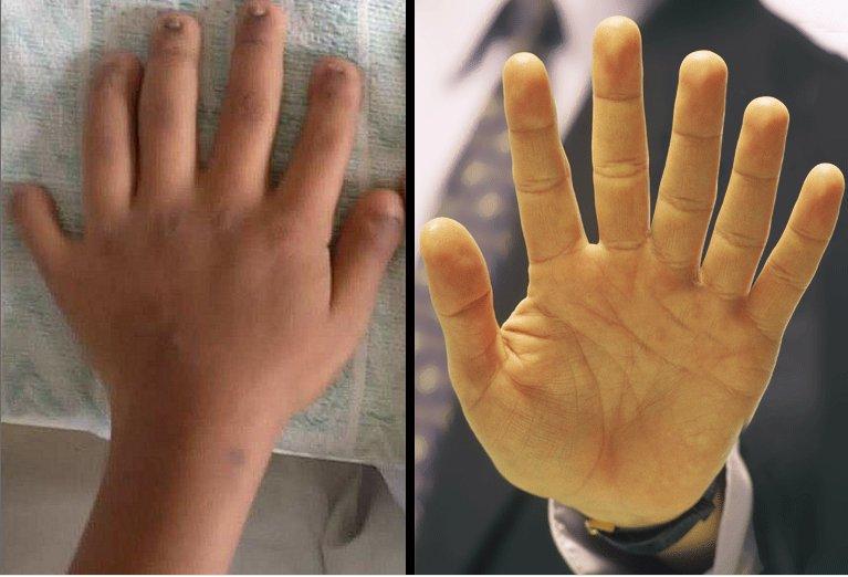 Polidactilia: Humanos com mãos com seis dedos podem ampliar suas habilidades