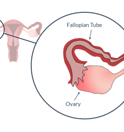 fallopian tube and ovary [ 1600 x 1000 Pixel ]