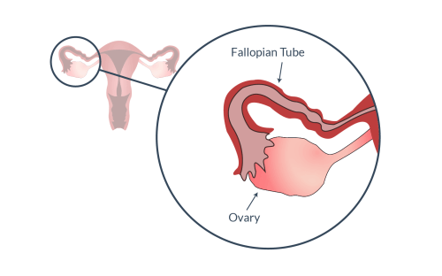 small resolution of fallopian tube and ovary