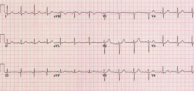 ECG EKG examples and quiz  Oxford Medical Education