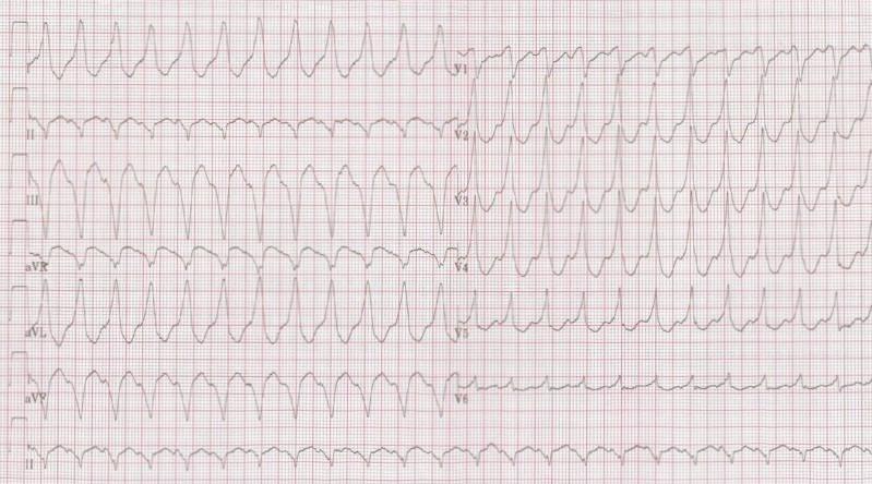 What is an Electrocardiogram (ECG, EKG)? |Ekg Examples