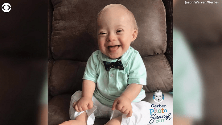 Gerber Baby Down Syndrome_1518038393955.png.jpg