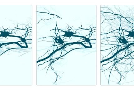 nöroplastisite