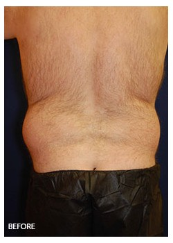 Liposuction Back and Waist BeforeAfter