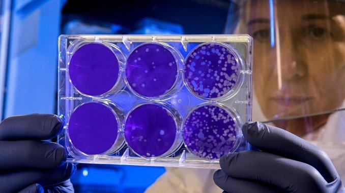 Estudian virus que genera infecciones, sin activar sistema inmune