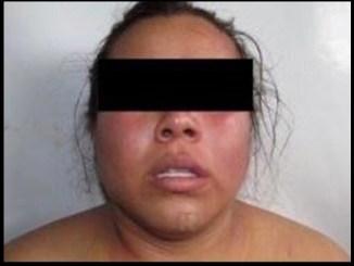 """Detienen a mujer apodada """"La Carnicera"""", mutilaba a sus víctimas"""