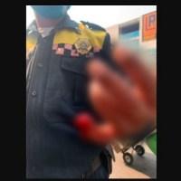 """Conductor le arranca pedazo de dedo a policía por ponerle """"araña"""" #VIDEO"""