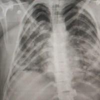 Radiografia en adolescente muestra deterioro pulmonar por COVID