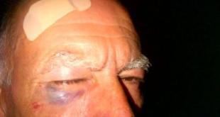 Teano / Riardo – Scontro in curva, altro che constatazione amichevole: calci e pugni fra conducenti