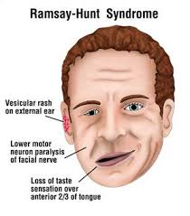 Ramsay Hunt Syndrome