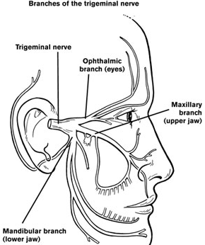 Trigeminal Neuralgia Treatment, TMJ Treatment Fort Myers