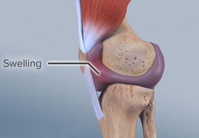 Sprained Knee Treatment NYC | Knee Pain Doctors New York ...