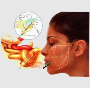 Sphenopalatine Ablation for Headache   Interventional Pain & Spine Centre
