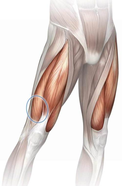 small resolution of diagram of leg pain