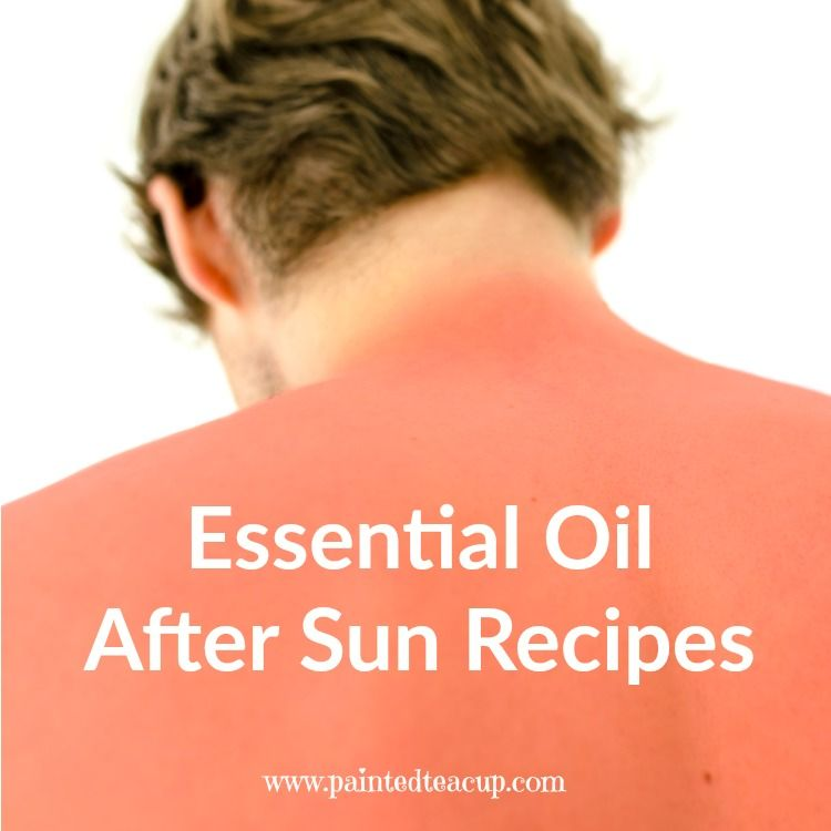 Did you spend a bit too much time in the sun? Here are some great essential oil after sun recipes to help soothe sore and irritated summer skin!