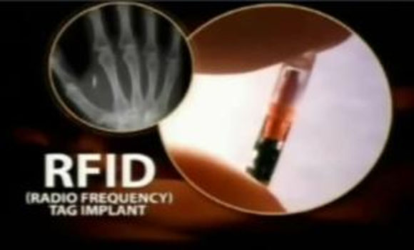 Pastor recibe Obamacare Chip RFID