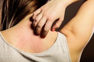 Skóra atopowa – objawy, największe wyzwania i pielęgnacja