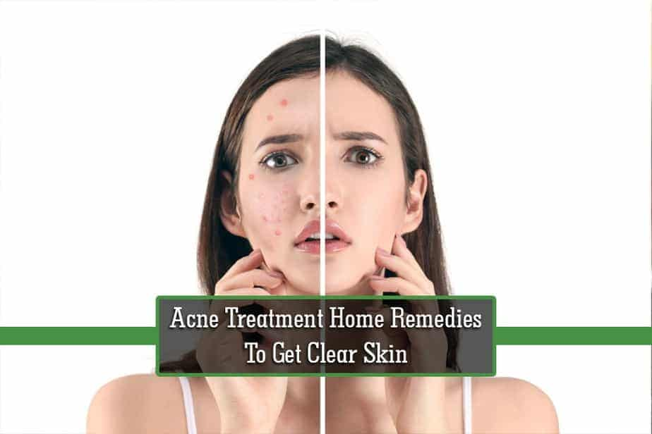 Best Acne Scar Treatment Best Acne Products 2020 Paktales