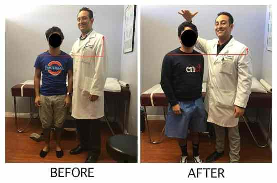 height increase surgery in Pakistan, height increase surgery, increase your height surgery, height surgery cost, height surgery before and after