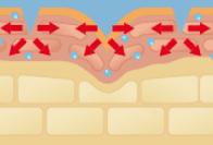 先端部のヒアルロン酸が皮膚中の水分で素早く溶ける。