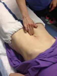 Post Partum Patient with 9 Finger Diastasis Recti  Pamela