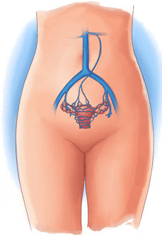 Female and Male Pelvic Congestion Syndrome PCS  Pamela