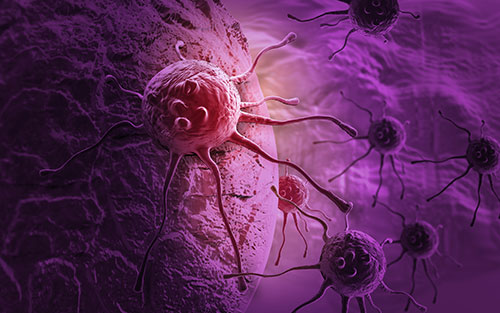 Different types of pancreatic cancer start in different types of cells in the body