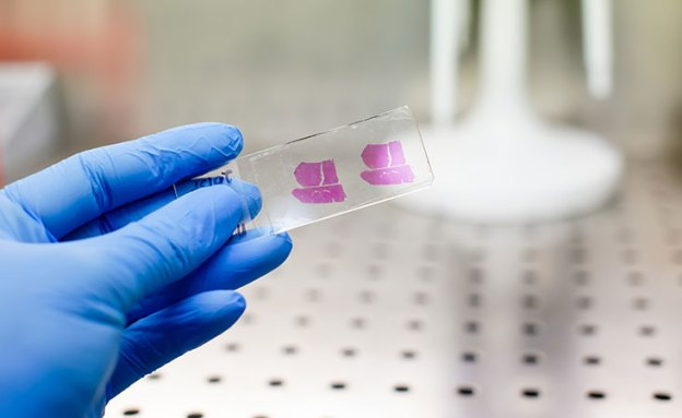 A tissue sample from a pancreatic tumor provides information to guide treatment decisions