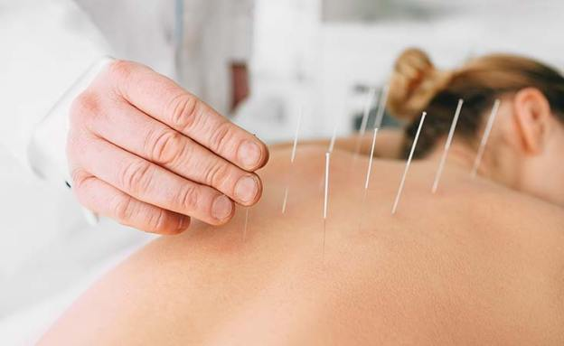 Pancreatic cancer patient attends an acupuncture session to relieve nausea and pain