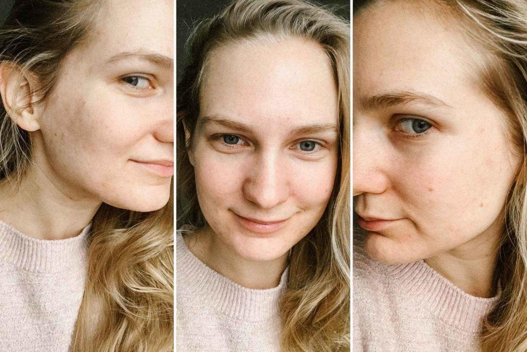 moja walka z trądzikiem hormonalnym, hiperandrogenizm