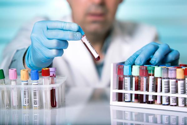 Prevedere i tumori con un test. Si può con un semplice esame del sangue