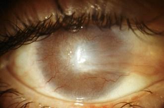 La cornea è completamente ricoperta da un tessuto vascolarizzato di origine congiuntivale come risposta cicatriziale ad una ustione.