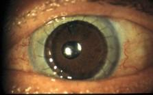 L'intervento di innesto di cellule staminali limbari coltivate. Dopo il trapianto di cornea la trasparenza è perfetta e l'epitelio si mantiene stabile grazie alle cellule staminali precedentemente innestate.