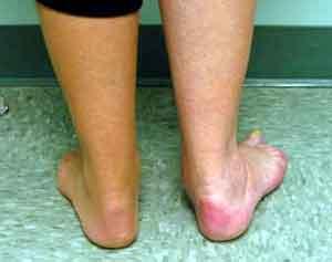 Posterior tibial tendon dysfunction; Tibial Tendon Dysfunction. Posterior; Tibialis Posterior Dysfunction