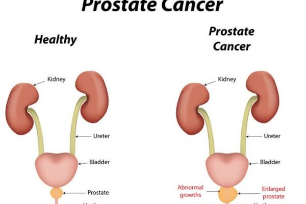 Learn about Prostate Cancer Screening