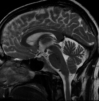 What to know about head and brain MRI scans