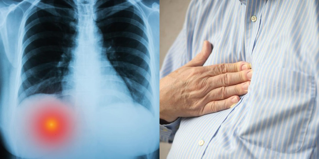 Here's What It Means If You Have Pain Under You Right Rib Cage