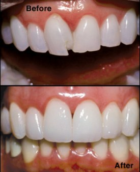 Tooth Bonding Before & After
