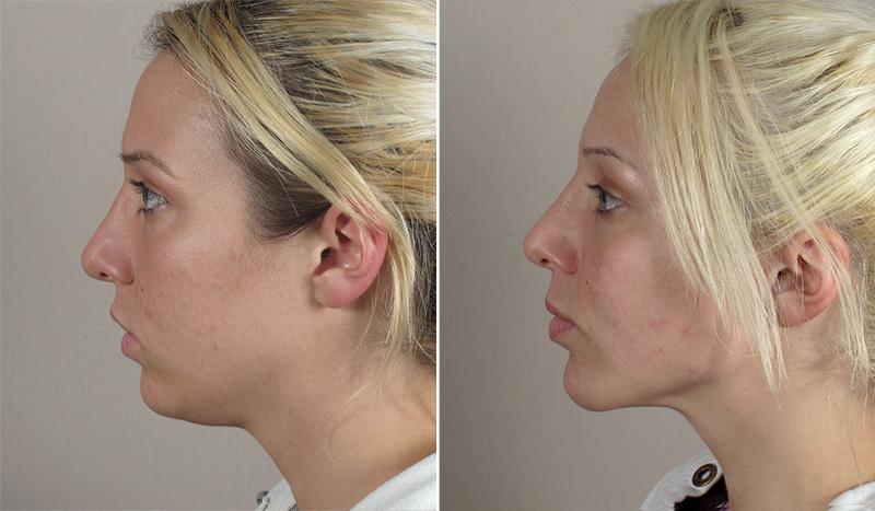 Neck Liposuction & Chin Implant Patient 11 - Parker Center ...