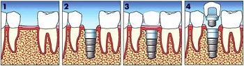 impianto dentale_2 - dentista piazza