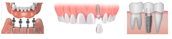 impianto dentale_4 - dentista piazza
